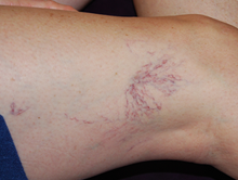 Before spider vein treatment