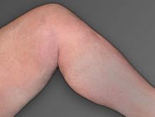 After venous insufficiency treatment
